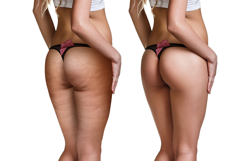 Cellulite treatment near me
