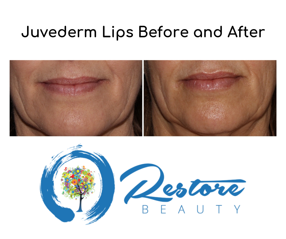 Fort Collins Juvéderm Injections