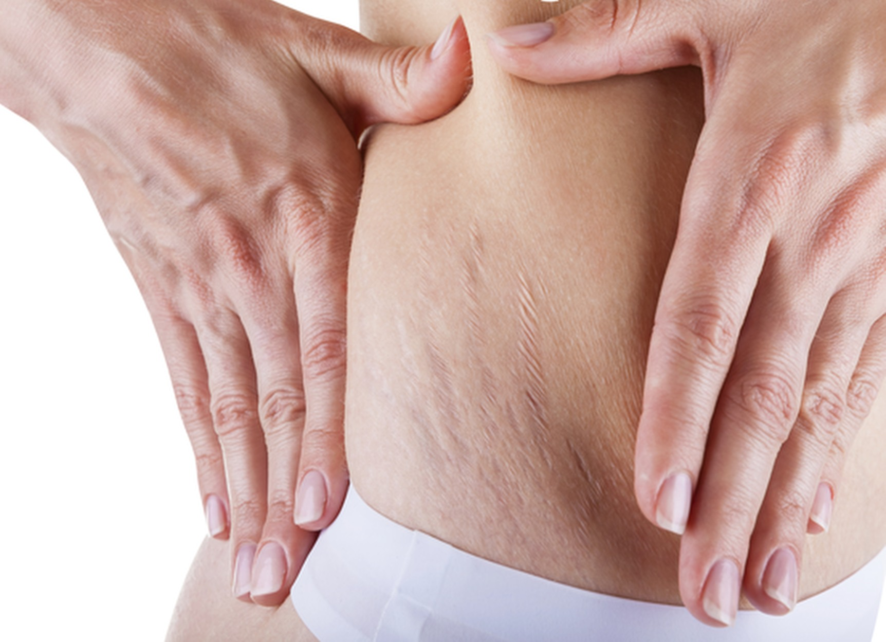 Stretch Mark Treatments with PRP at Restore Beauty Loveland
