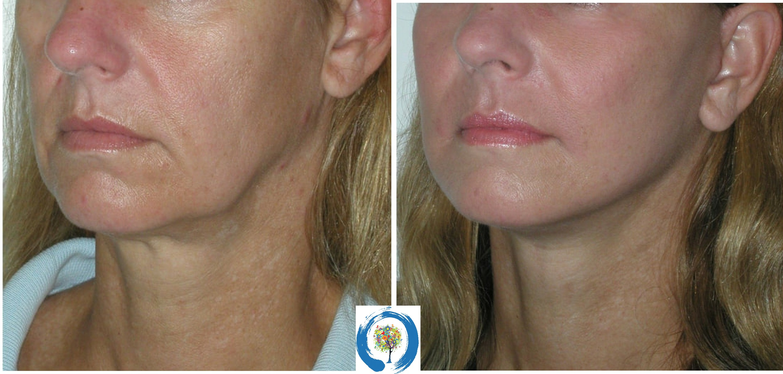 MINT PDO Thread Lift at Restore Beauty in Loveland
