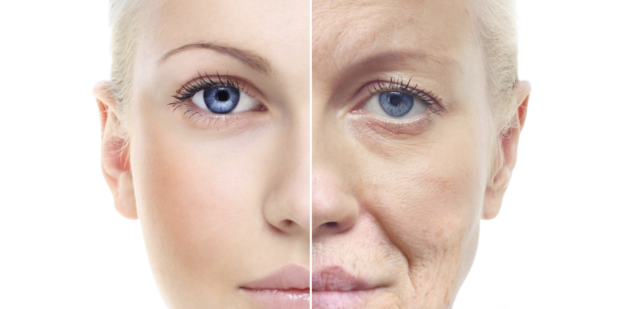 Anti-aging skin rejuvenation with PRP at Restore Beauty Loveland