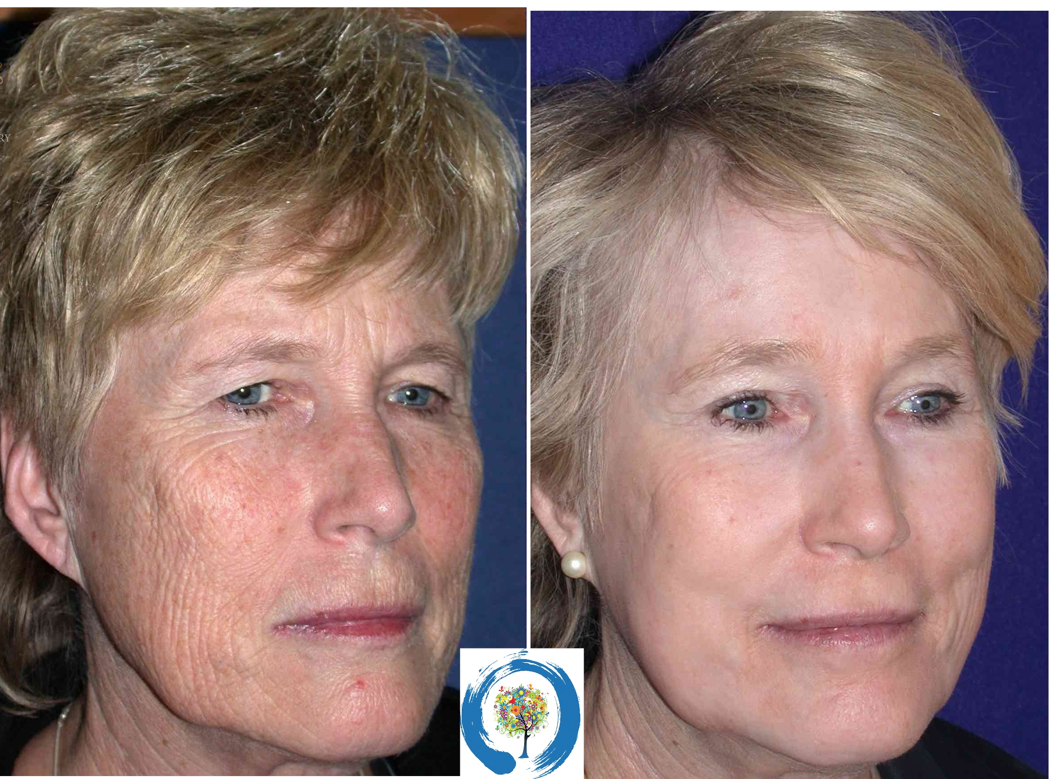 Laser Resurfacing face