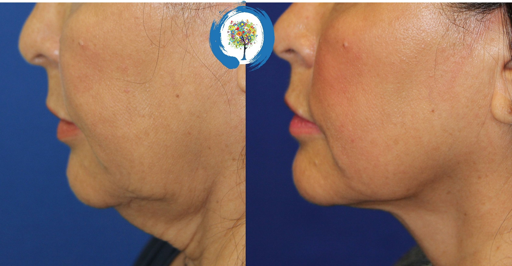FaceTite Skin Tightening in Loveland and Fort Collins at Restore Beauty