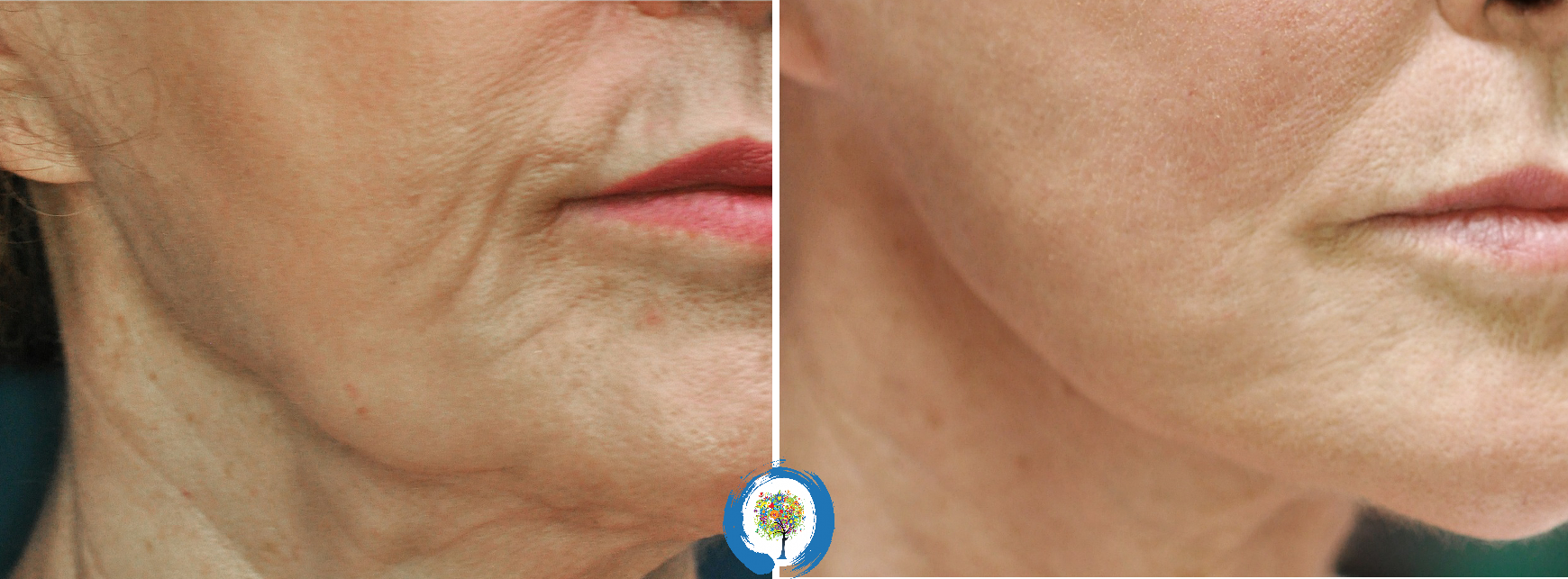 Profound RF Microneedling at Restore Beauty in Loveland/Fort Collins for loose, sagging skin on the face and neck
